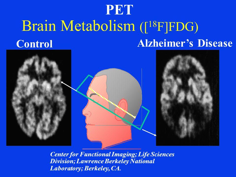 Brain Metabolism ([18F]FDG)